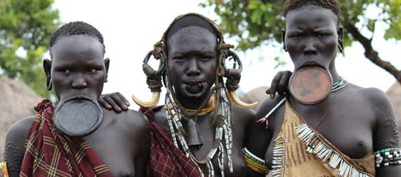 Lip Plating Ethiopia